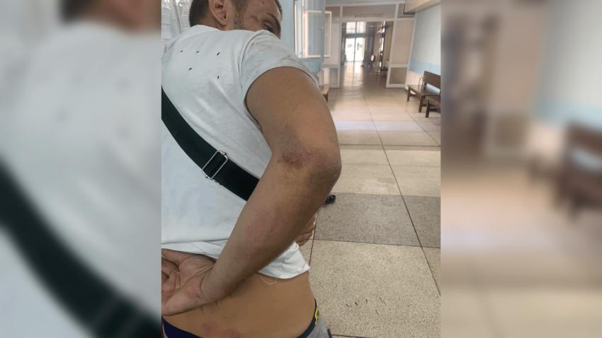 Полицаи пребиха двама младежи в Русе, объркали ги с издирван лихвар /ВИДЕО/